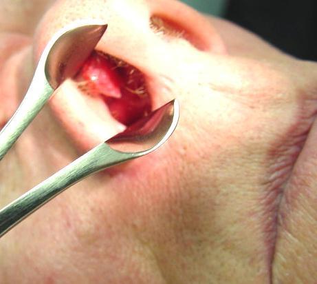 Доброкачественные опухоли носа и околоносовых пазух - Папиллома ...