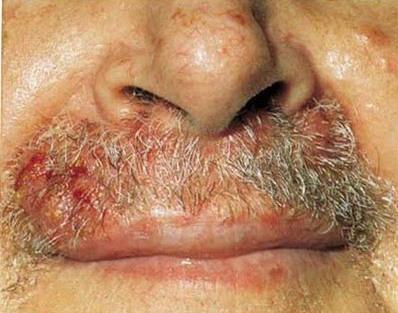 Заболевания наружного носа - Сикоз преддверия носа, лечение в Москве