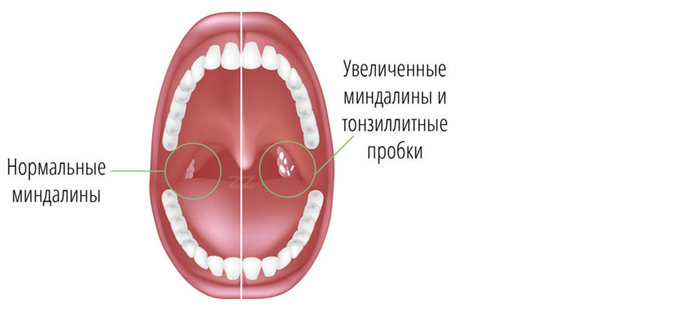 Удаленные миндалины фото горла 9