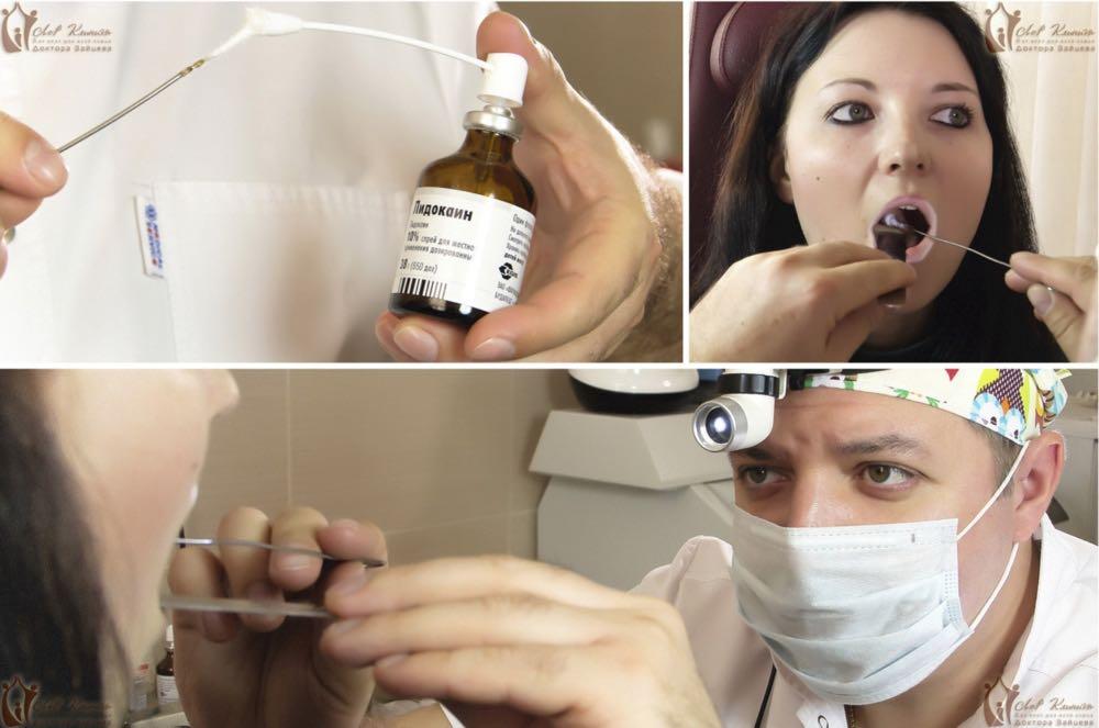 Анастезия миндалин