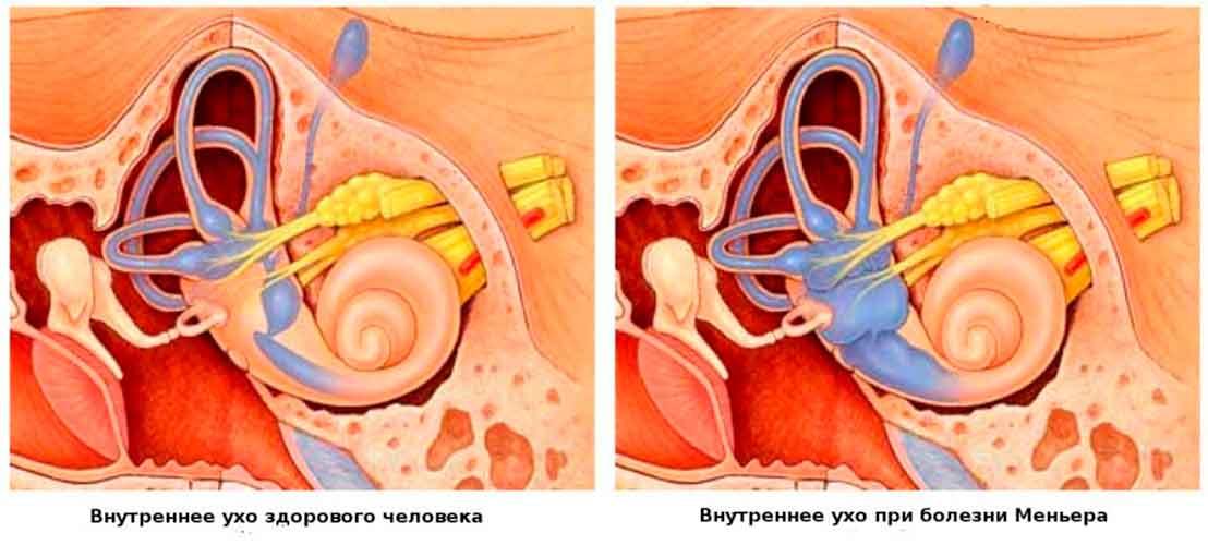 1234 - Lesser disease symptoms causes treatment