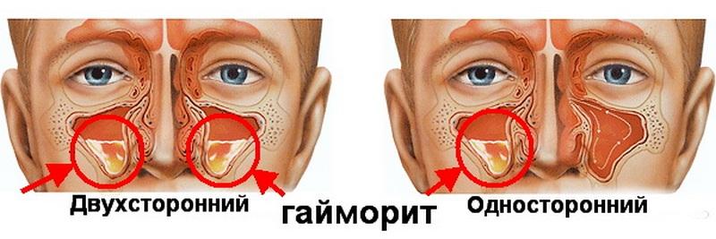 Двусторонний гайморит (хронический): признаки, симптомы и лечение