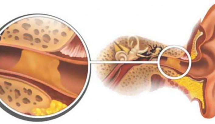 Распространенные причины боли в левом ухе