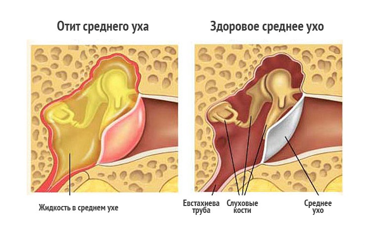 Может ли вода из горла попасть в ухо