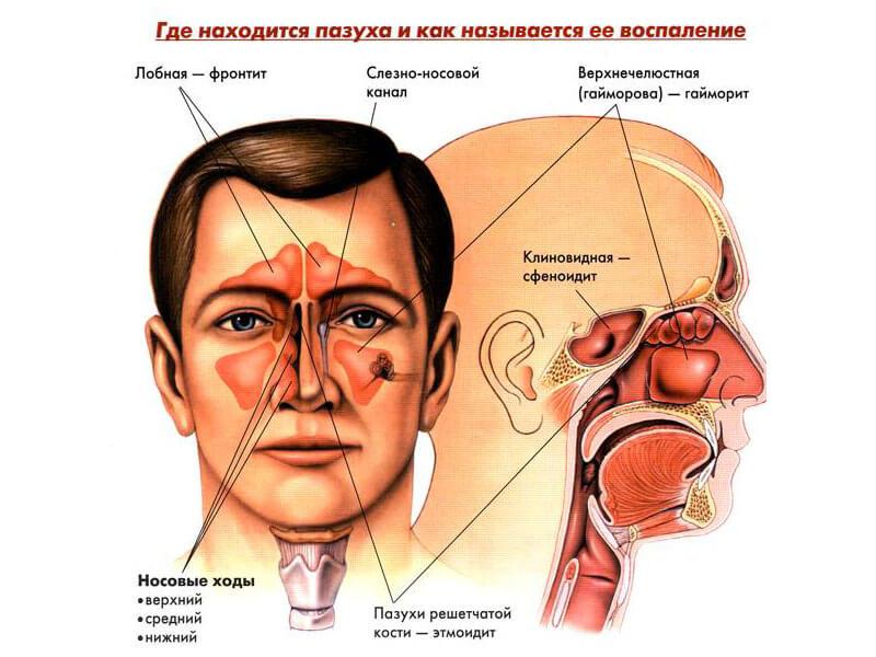 Симптомы синусита у ребенка лечение острой и хронической формы заболевания