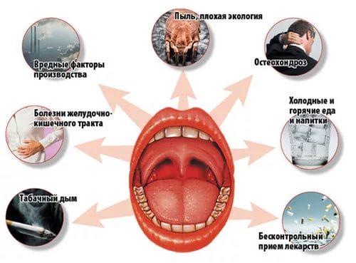 признаки тонзиллита у взрослых фото