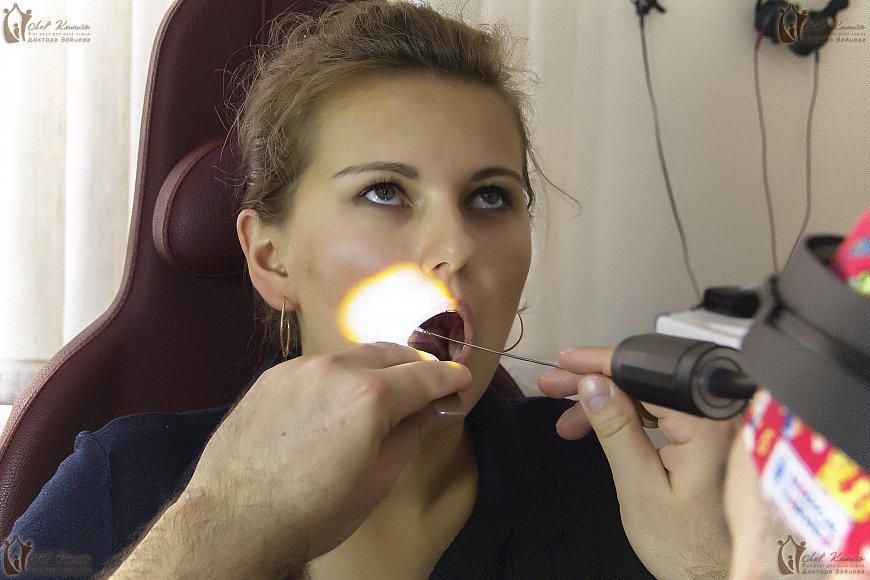 Промывание миндалин вакуумным методом видео
